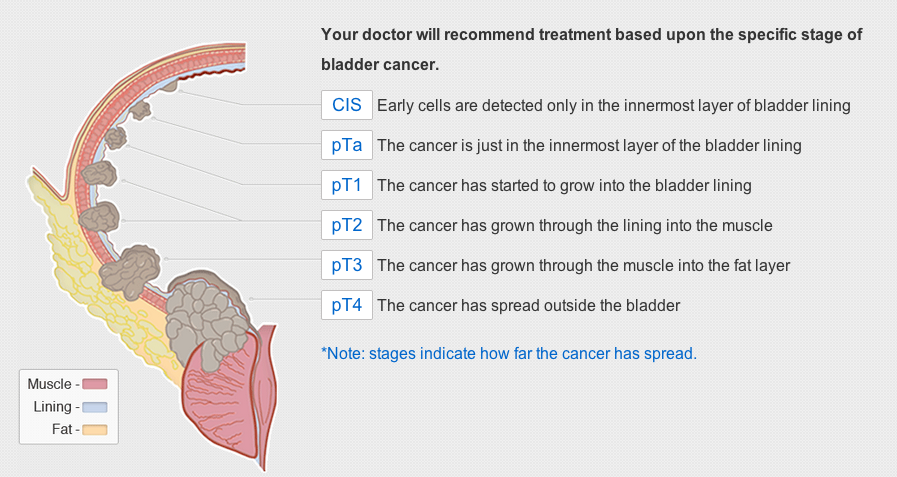 bladder-cancer-stages2.png