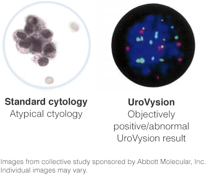 cytology-comparison.png